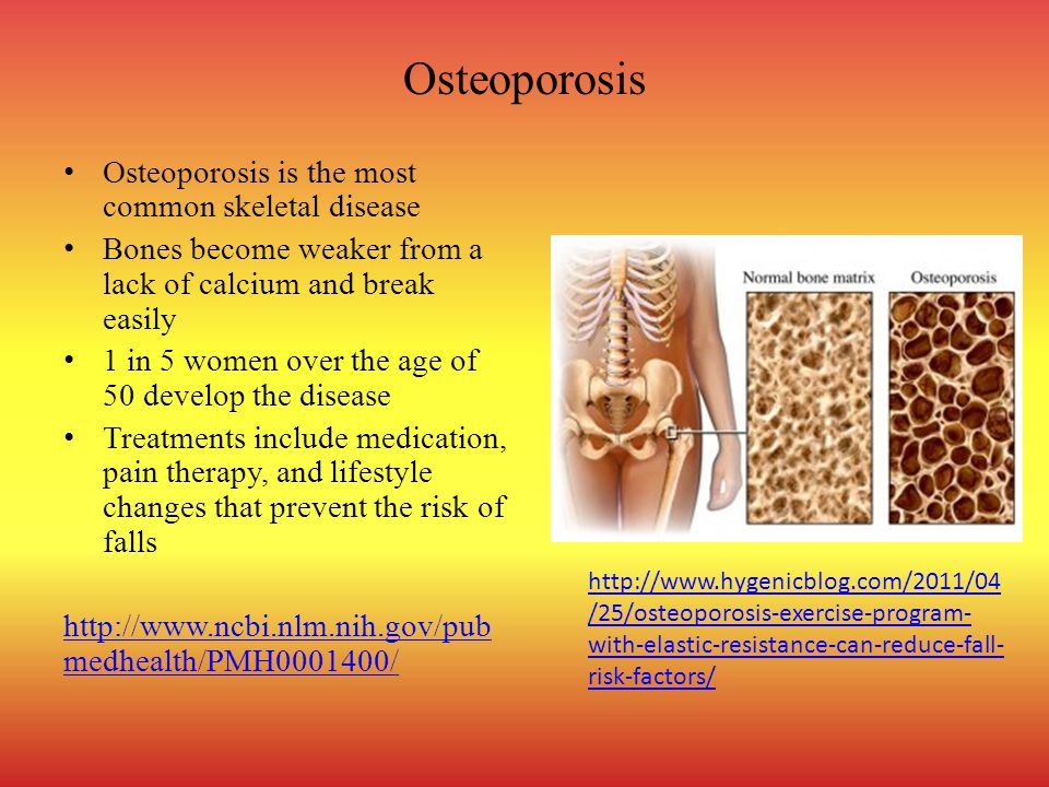 Osteoporosis Osteoporosis is the most common skeletal disease