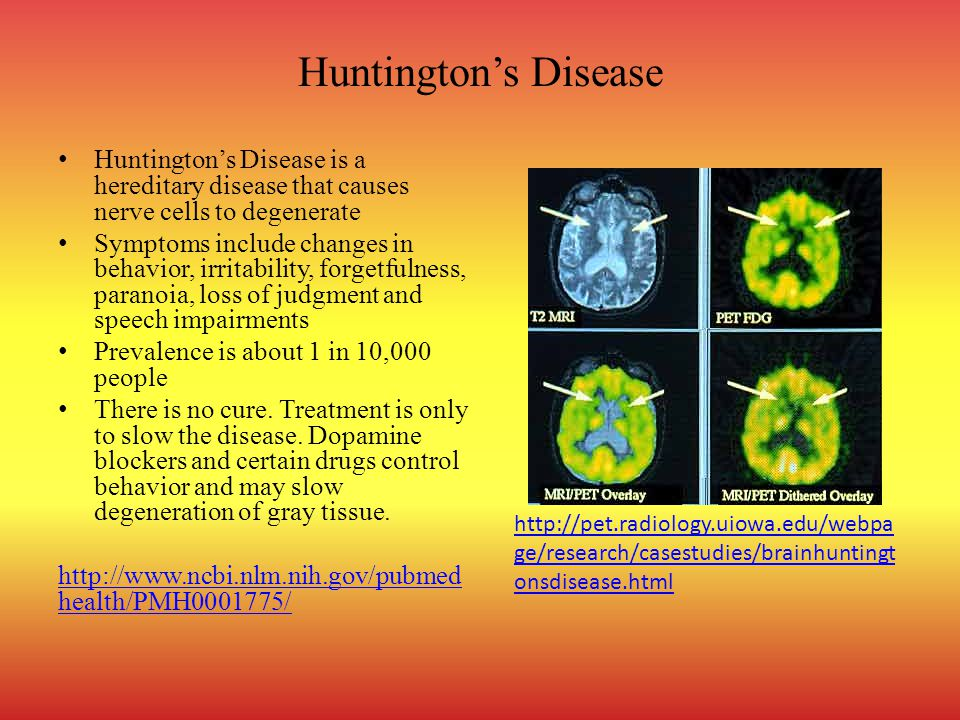Huntington's Disease Huntington's Disease is a hereditary disease that causes nerve cells to degenerate.
