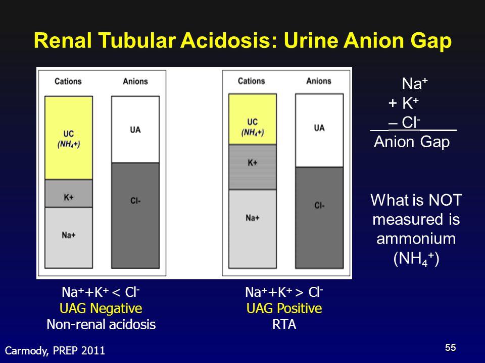 Renal Tubular Acidosis: Urine Anion Gap