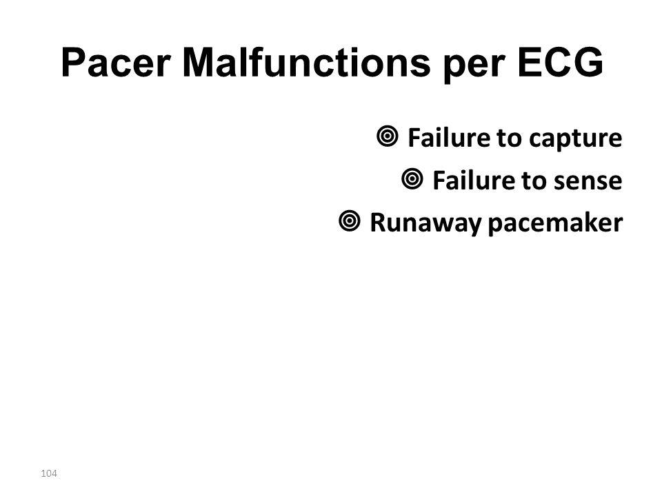 Pacer Malfunctions per ECG
