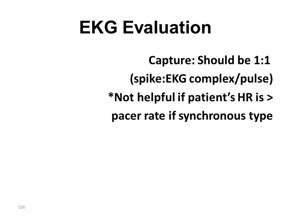 EKG Evaluation Capture: Should be 1:1 (spike:EKG complex/pulse)