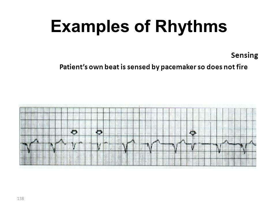 Examples of Rhythms Sensing