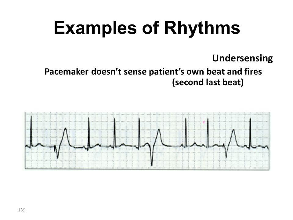 Examples of Rhythms Undersensing