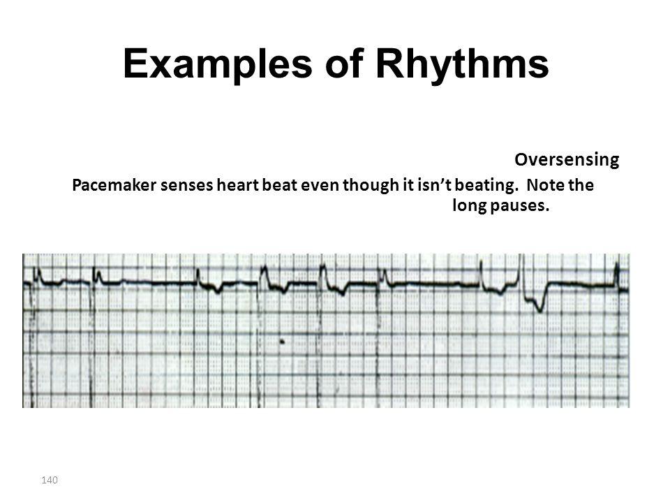 Examples of Rhythms Oversensing
