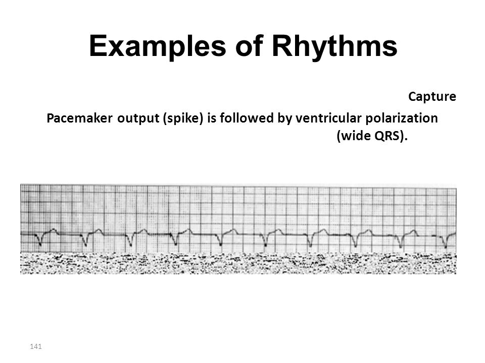 Examples of Rhythms Capture