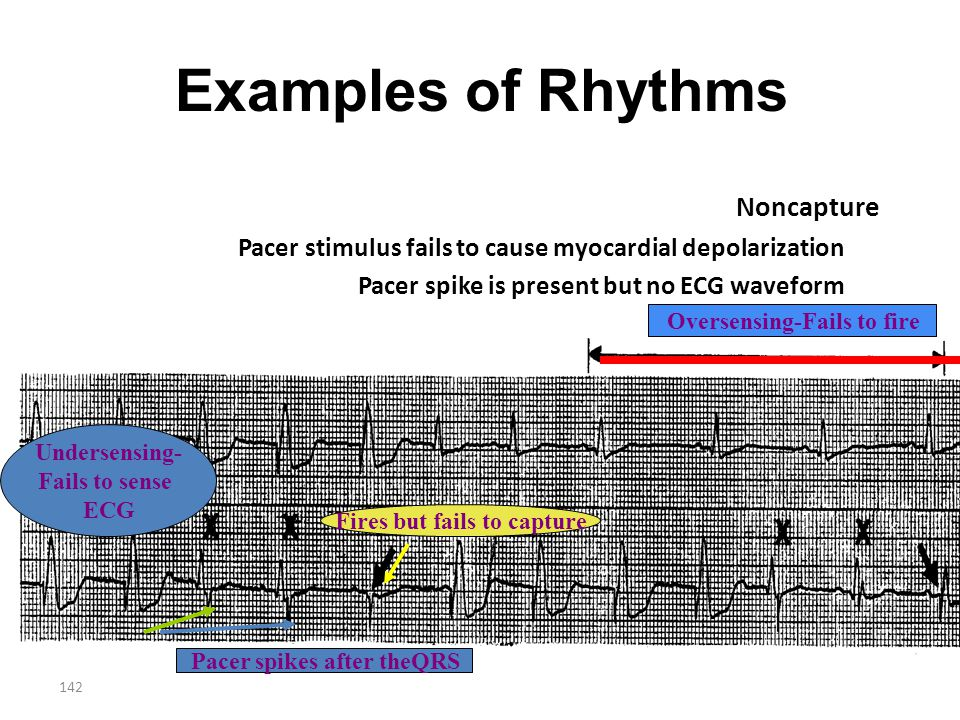 Examples of Rhythms Noncapture