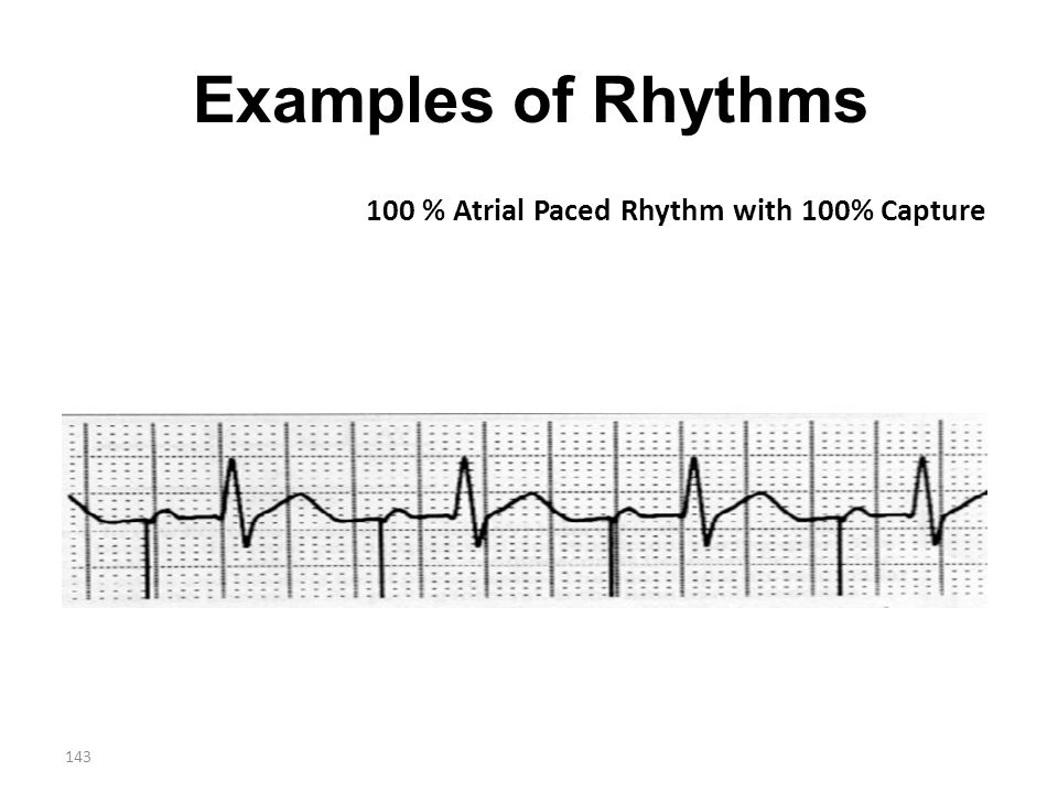 Examples of Rhythms 100 % Atrial Paced Rhythm with 100% Capture