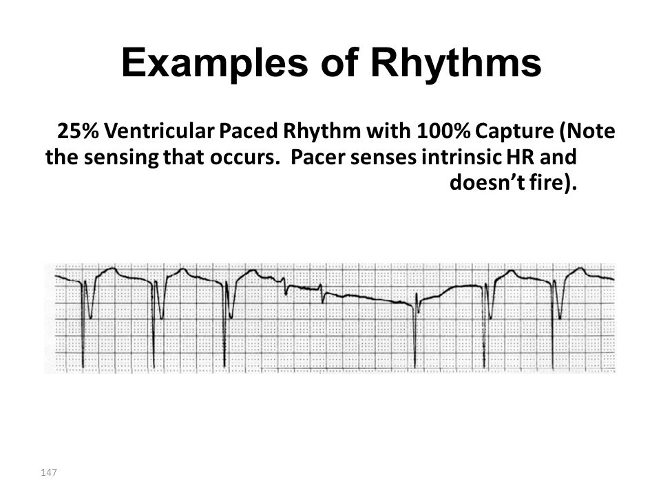 Examples of Rhythms 25% Ventricular Paced Rhythm with 100% Capture (Note the sensing that occurs.