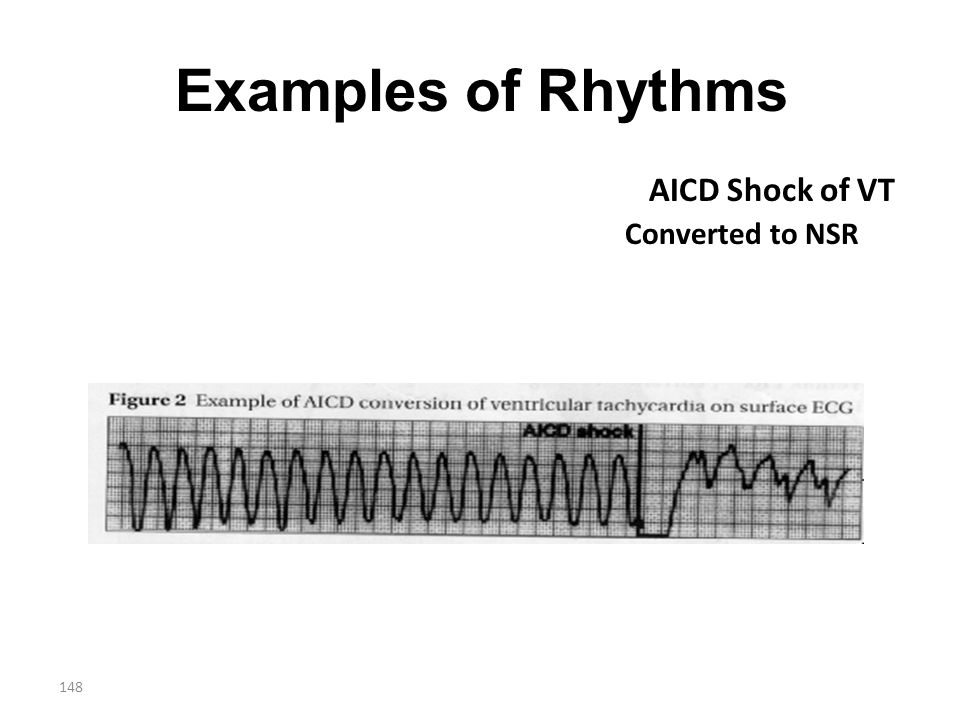 Examples of Rhythms AICD Shock of VT Converted to NSR
