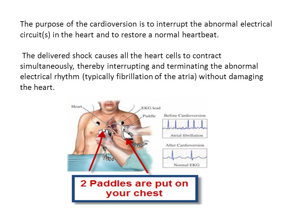 The purpose of the cardioversion is to interrupt the abnormal electrical circuit(s) in the heart and to restore a normal heartbeat.