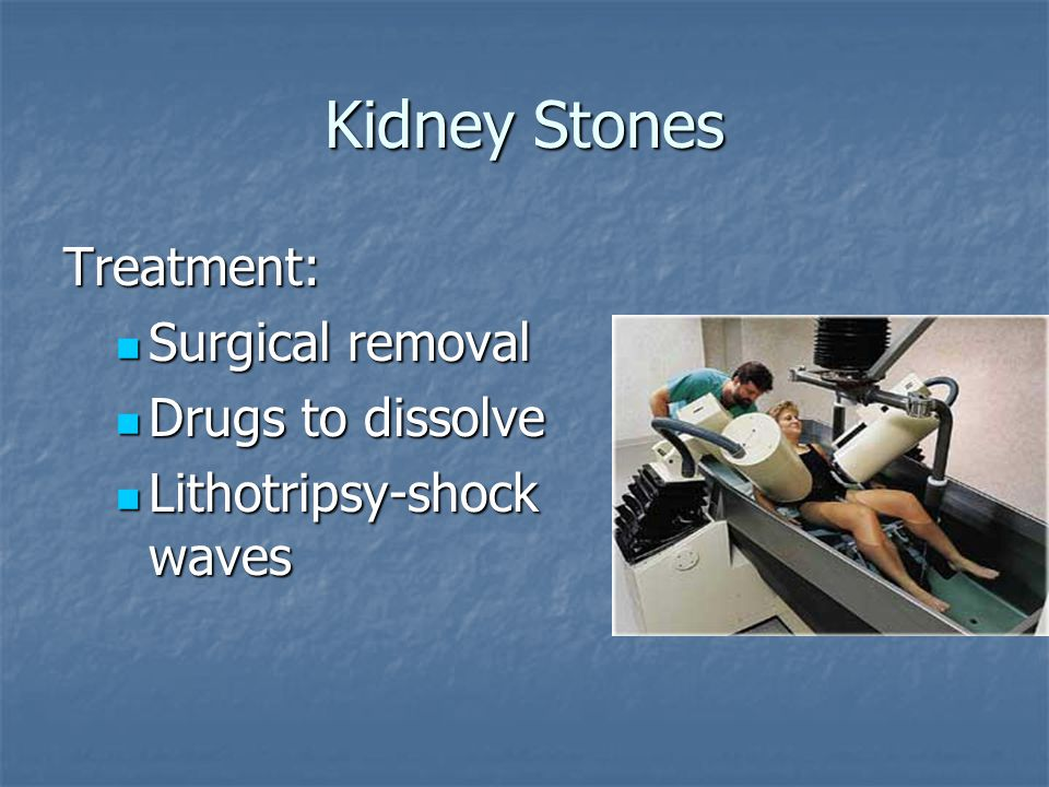 Kidney Stones Treatment: Surgical removal Drugs to dissolve