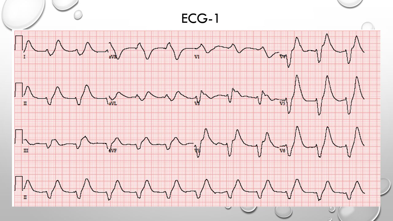 ECG-1