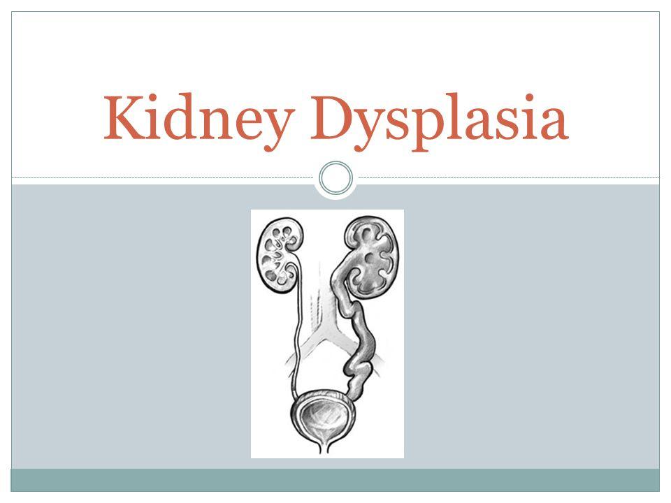Kidney Dysplasia