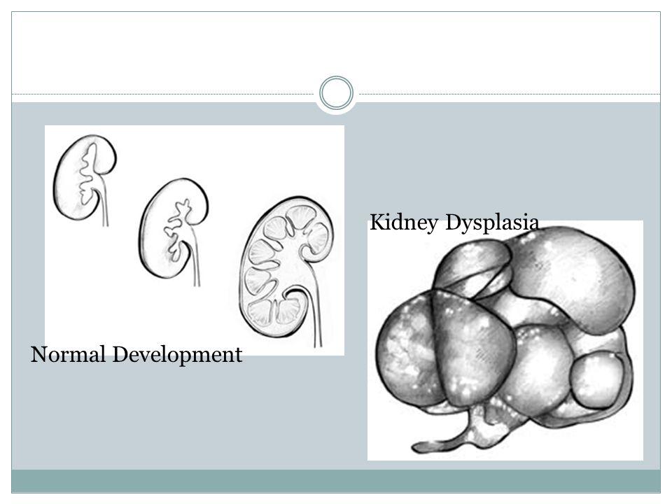 Kidney Dysplasia Normal Development