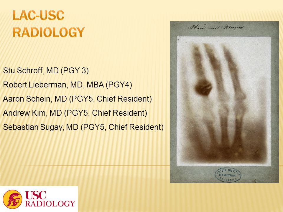 LAC-USC Radiology Stu Schroff, MD (PGY 3)