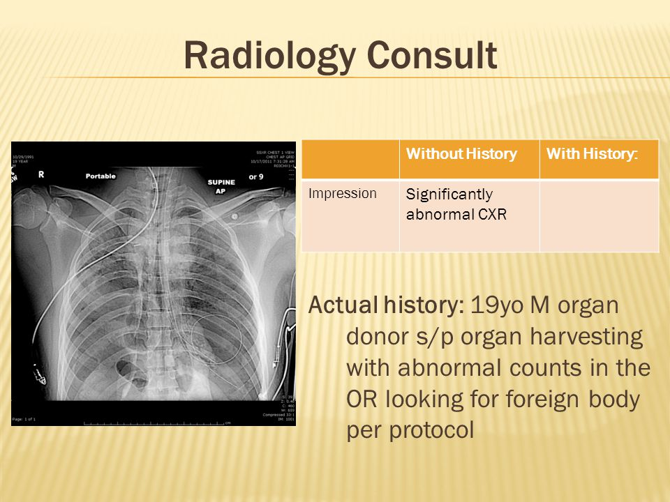 Radiology Consult Without History. With History: Impression. Significantly abnormal CXR.