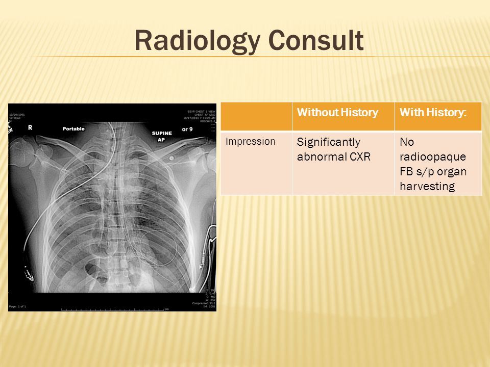 Radiology Consult Without History With History: