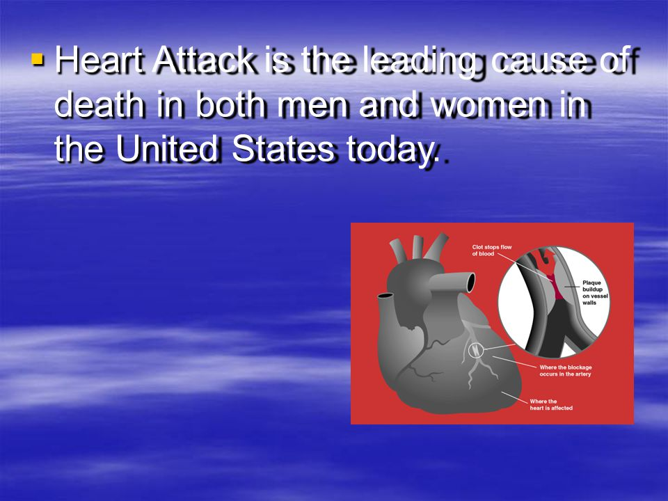 Heart Attack is the leading cause of death in both men and women in the United States today.