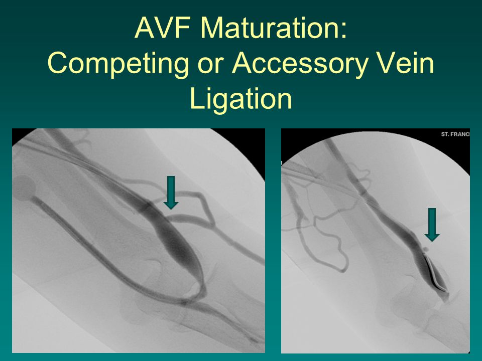 AVF Maturation: Competing or Accessory Vein Ligation
