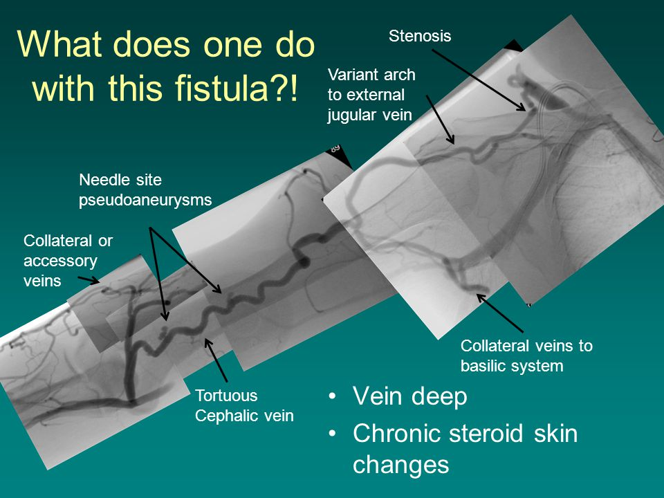 What does one do with this fistula !