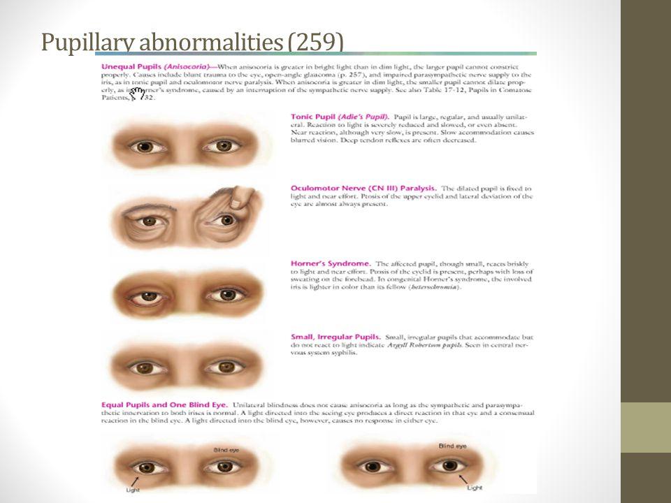 Pupillary abnormalities (259)