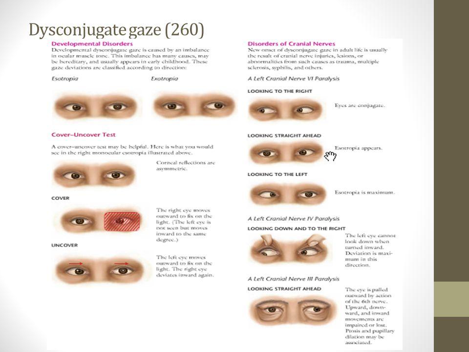 Dysconjugate gaze (260)