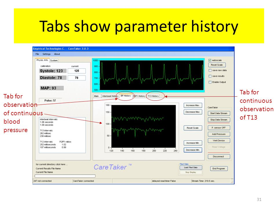 Tabs show parameter history