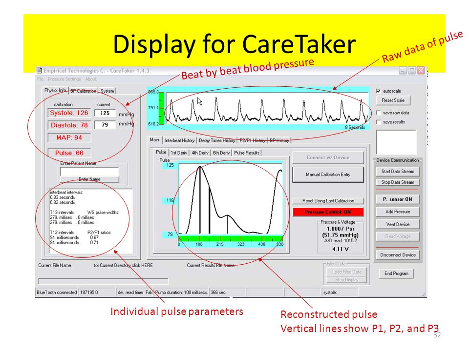 Display for CareTaker Raw data of pulse Beat by beat blood pressure
