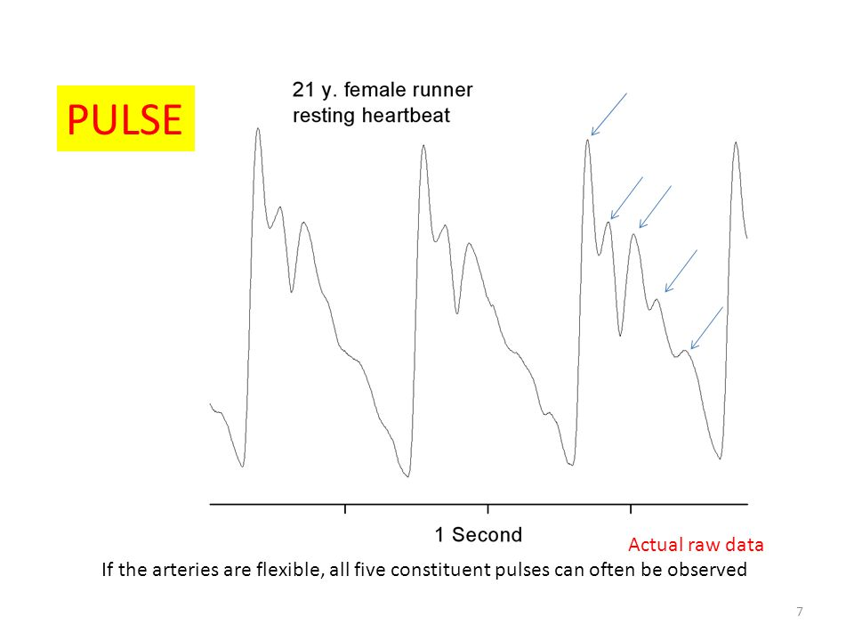 PULSE Actual raw data.