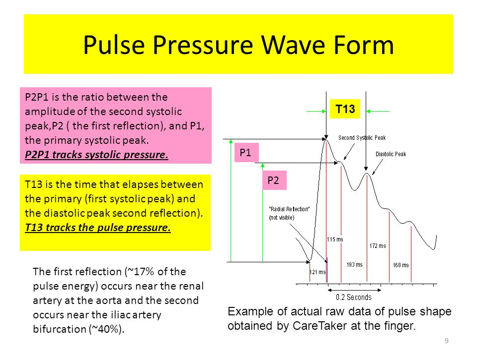 Pulse Pressure Wave Form