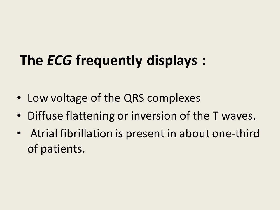The ECG frequently displays :