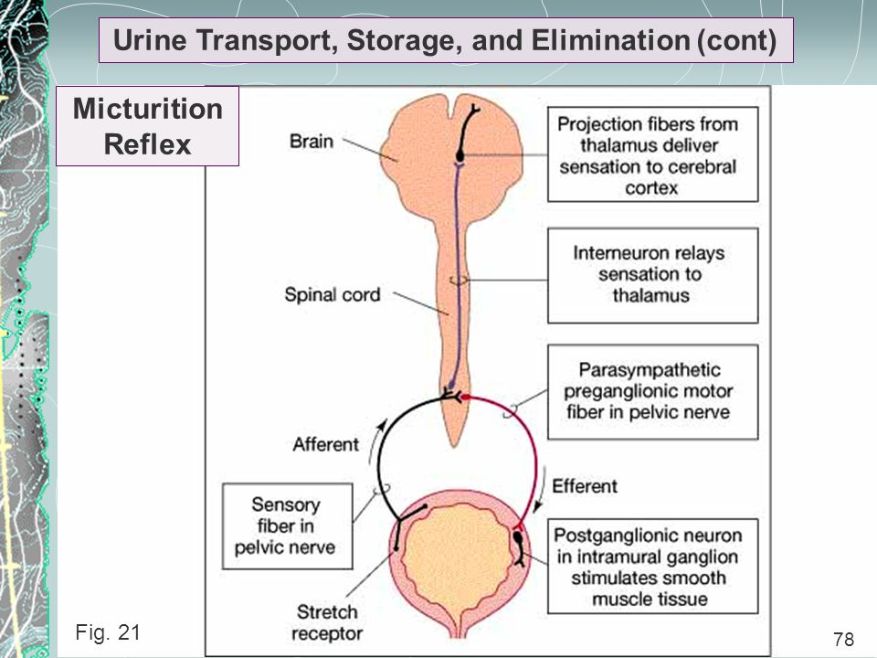 Urine Transport, Storage, and Elimination (cont)