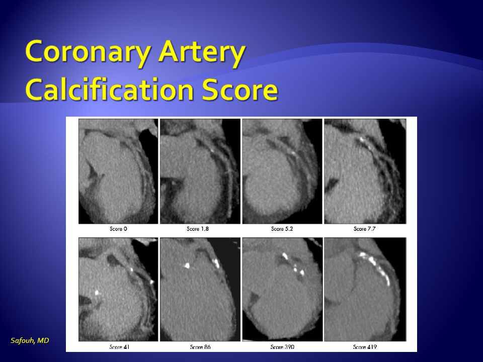 Coronary Artery Calcification Score
