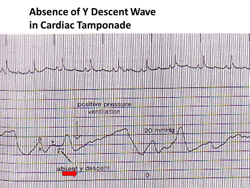 Absence of Y Descent Wave in Cardiac Tamponade