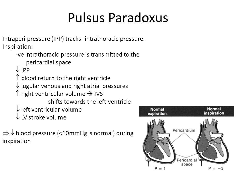 Pulsus Paradoxus Intraperi pressure (IPP) tracks- intrathoracic pressure. Inspiration: