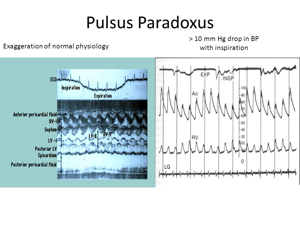 Pulsus Paradoxus > 10 mm Hg drop in BP with inspiration