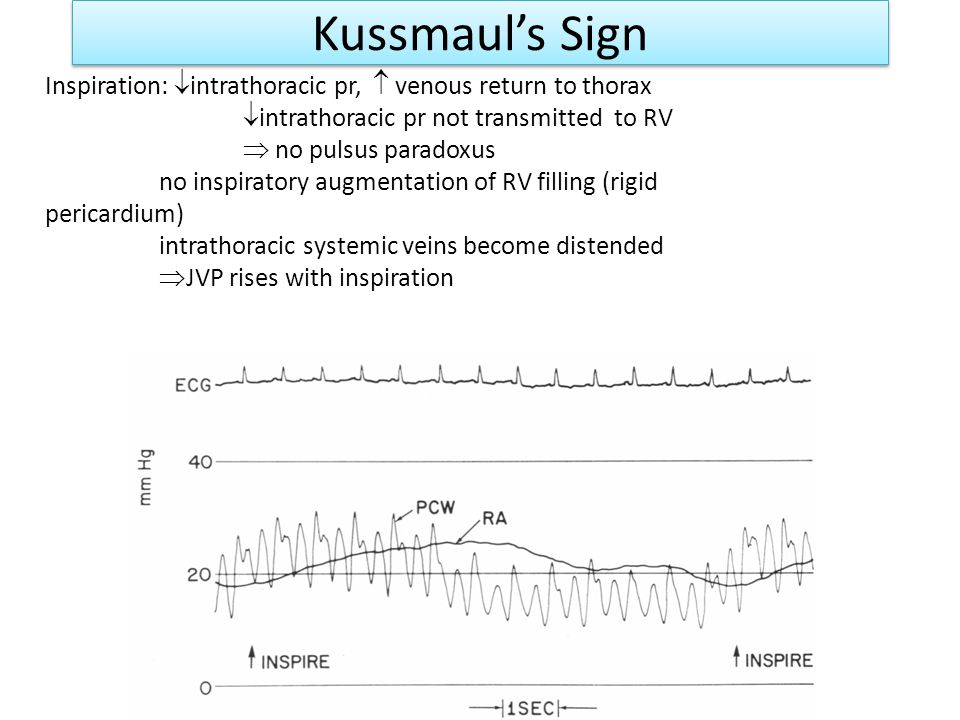 Kussmaul's Sign Inspiration: intrathoracic pr,  venous return to thorax. intrathoracic pr not transmitted to RV.