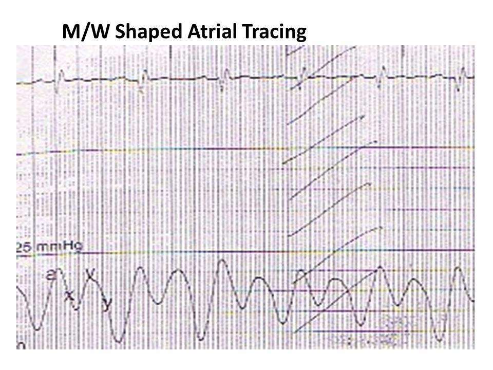 M/W Shaped Atrial Tracing