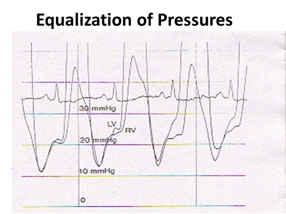 Equalization of Pressures