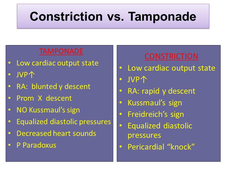 Constriction vs. Tamponade
