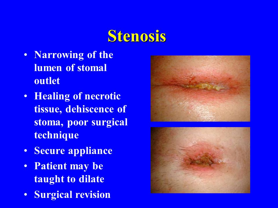 Stenosis Narrowing of the lumen of stomal outlet