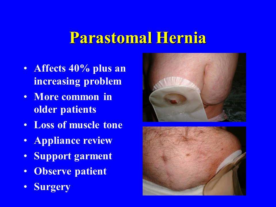 Parastomal Hernia Affects 40% plus an increasing problem