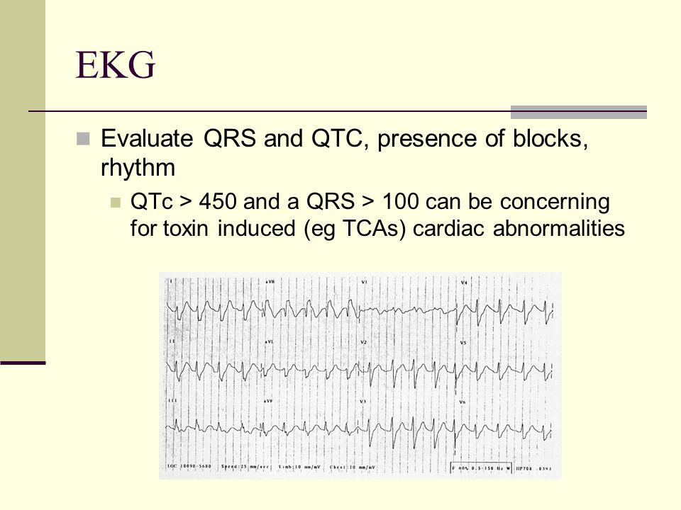 EKG Evaluate QRS and QTC, presence of blocks, rhythm