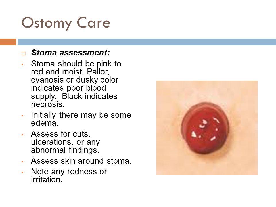 Ostomy Care Stoma assessment: