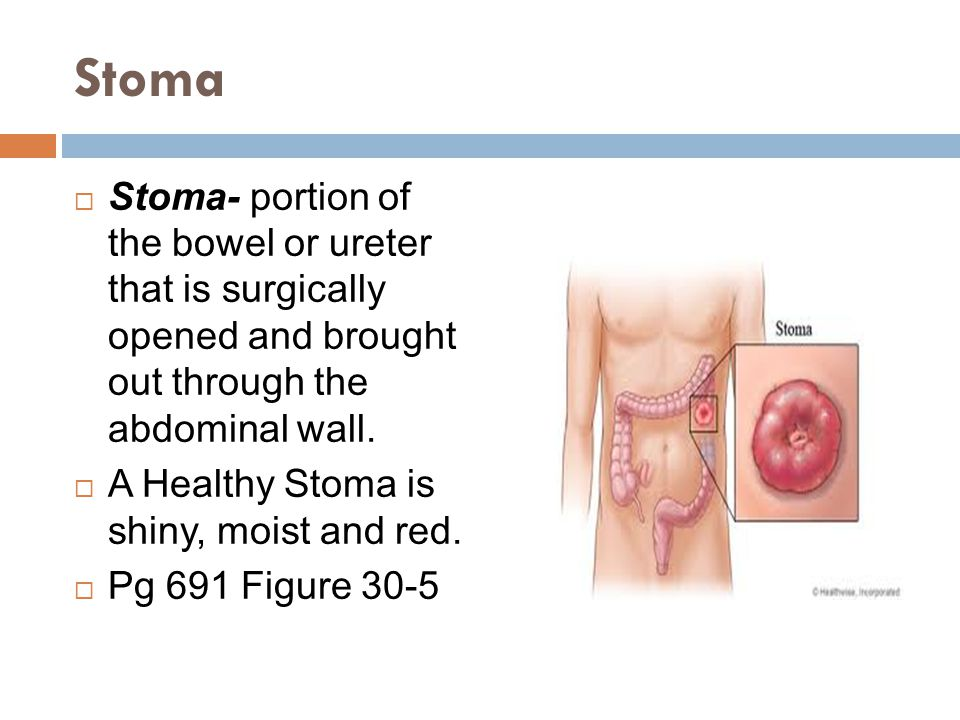 Stoma Stoma- portion of the bowel or ureter that is surgically opened and brought out through the abdominal wall.