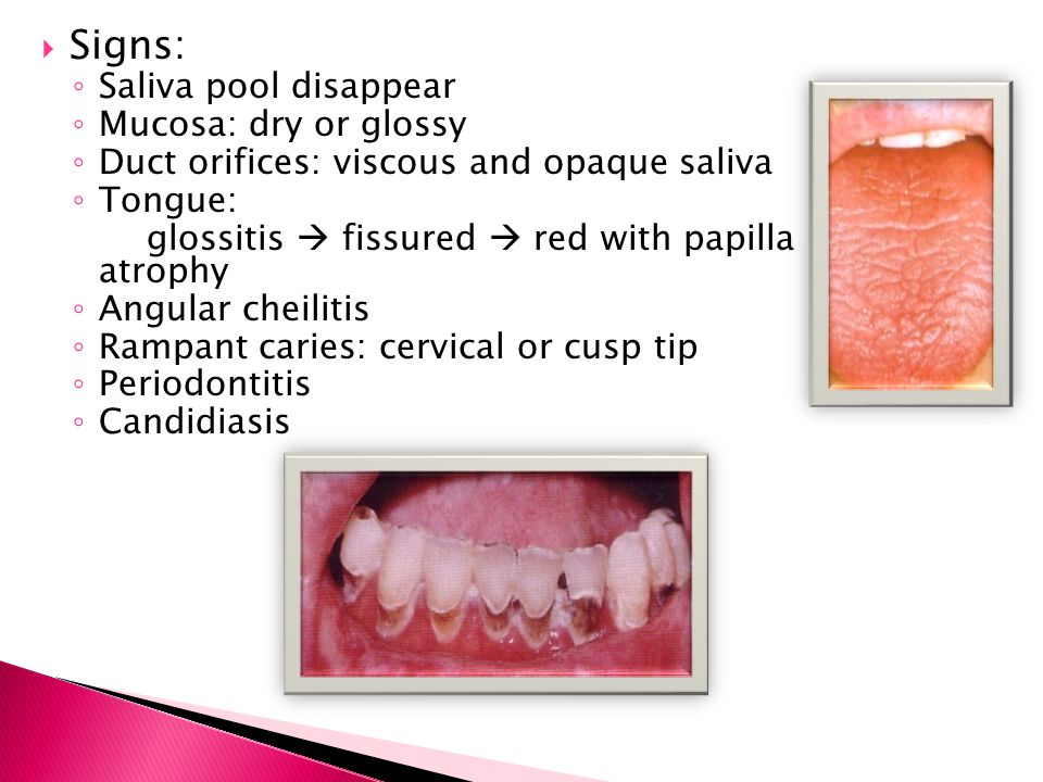 Signs: Saliva pool disappear Mucosa: dry or glossy