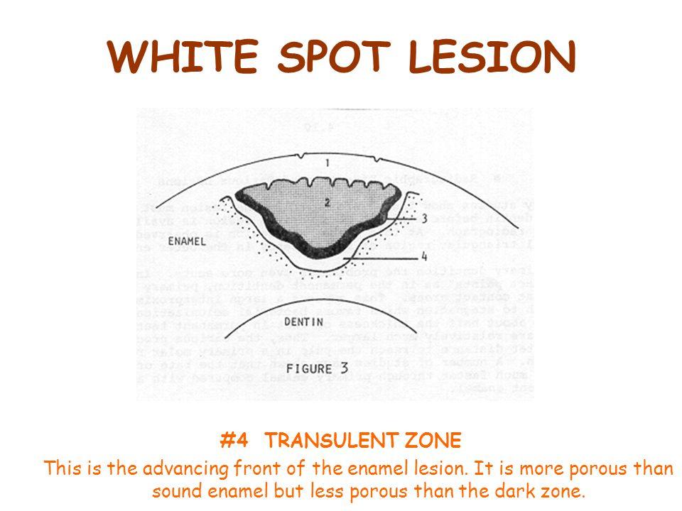 WHITE SPOT LESION #4 TRANSULENT ZONE