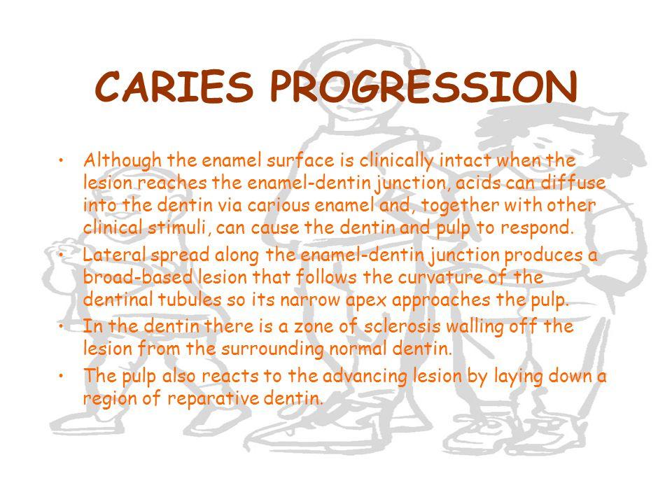 CARIES PROGRESSION