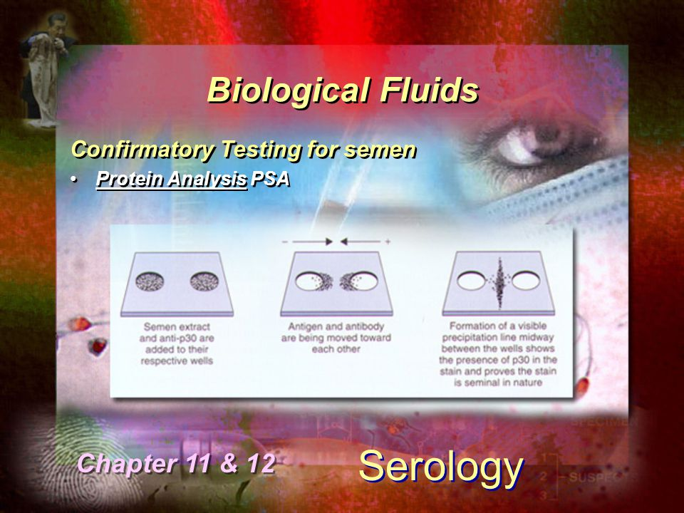 Serology Biological Fluids Chapter 11 & 12