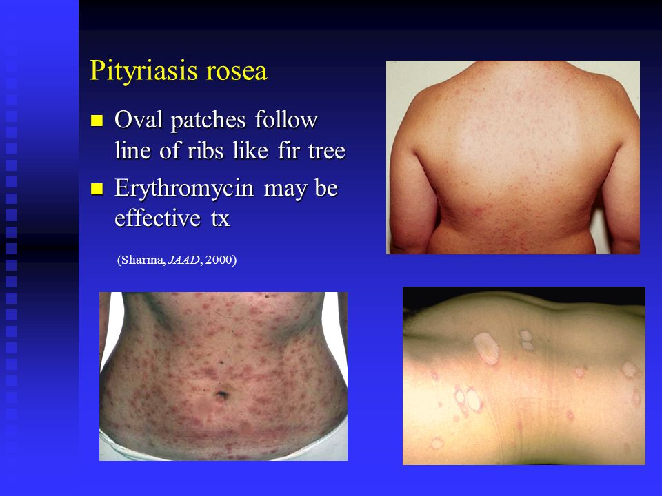 Pityriasis rosea Oval patches follow line of ribs like fir tree